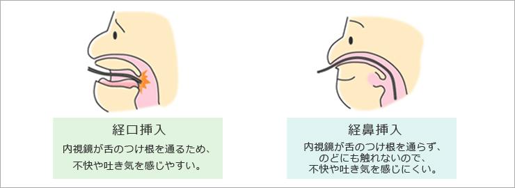 経口・経鼻挿入の違い_イラスト